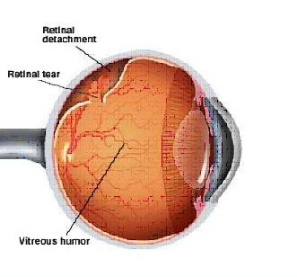 retinal_detachment.jpg